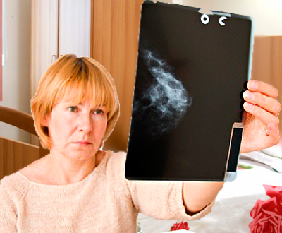 Фиброзно кистозная мастопатия лечение, симптомы и